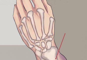LFK przy złamaniu kości promieniowej: rady lub rady eksperta