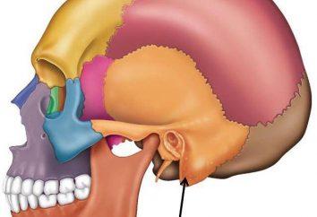 Zapalenie wyrostka sutkowatego: co to jest? objawy wyrostka sutkowatego, objawy i leczenie