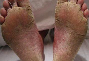 Środki ludowe dla paznokci grzyba na nogach: skuteczne recepty