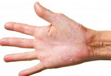 Warum ist die Haut an den Händen oblazit und wie man sie bekämpfen?