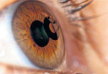 Chirurgia della cataratta: recensioni, quale lente è meglio? clinica di oftalmologia