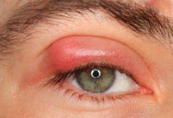 Calazio palpebra superiore: sintomi e trattamento.
