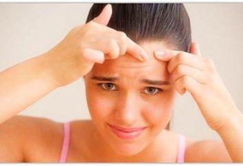 Jak na tydzień, aby pozbyć się trądziku: skuteczne metody i zalecenia