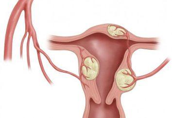 leczenie mięśniaki macicy jest skuteczne środki zaradcze ludowe: Opinie
