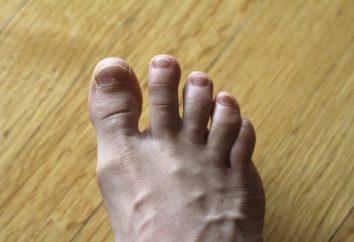 Dedo debajo de los crecimientos y las uñas – tratamiento y la prevención