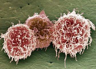 Streptococcus viridans: la caractérisation de l'agent pathogène et l'infection