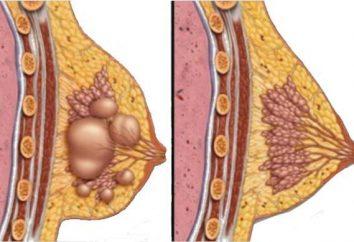 Quiste de cáncer de mama: causas y tratamiento
