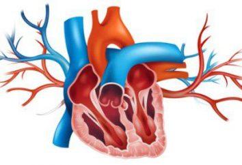 Aorta jest uszczelniony – co to znaczy? Leczenie aorty uszczelką