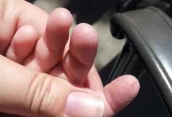 L'enfant a une peau sur les doigts oblazit ce qu'il faut faire?