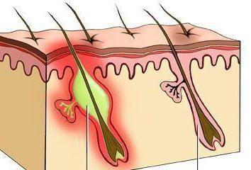 Czyrak na nodze: przyczyny, metody leczenia