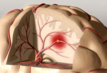 Microstroke: sintomas e tratamento, causas e prevenção