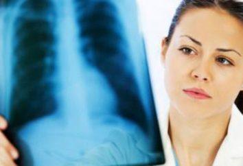 La tuberculose et la grossesse: la grossesse après la tuberculose, la tuberculose pendant la grossesse, la tuberculose, l'impact sur la grossesse