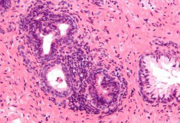 prostatite calculous negli uomini: cause, sintomi, diagnosi e trattamento