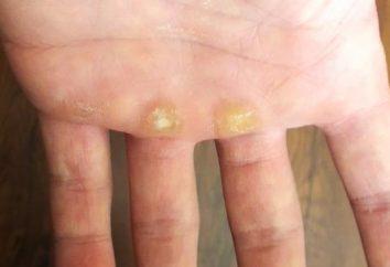 Como remover calos nas mãos por meio de remédios populares