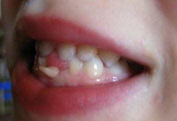 Dlaczego marzenie rozwijane zębów: na lepsze lub gorsze?