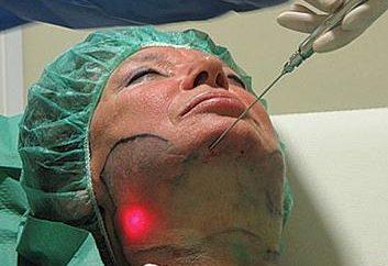 Lipolisi laser: recensioni in modo positivo garantiti