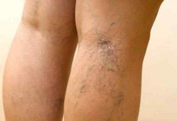 Come rimuovere i capillari rotti sulle gambe?