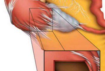 ¿Cómo tratar hidrosalpinge de las trompas de Falopio? Indicaciones a la Etapa