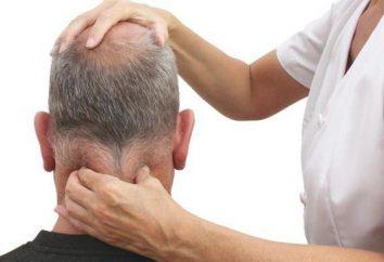 inflammation du nerf occipital: symptômes et traitement