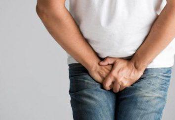 O perigo de varicocele em homens?