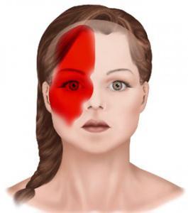 welchem arzt bei migräne aufsuchen