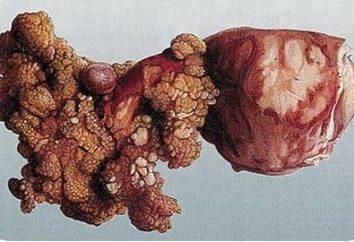 Come è il trattamento di cancro ovarico in Israele