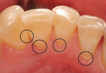 Una sana cavità orale: come rimuovere il tartaro in casa