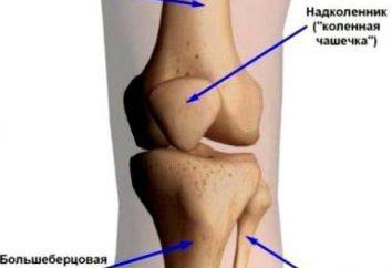 Chondromalacia del ginocchio: cause, sintomi, diagnosi e metodi di trattamento