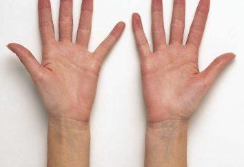 Les réponses à la question « Pourquoi transpire sa main? »