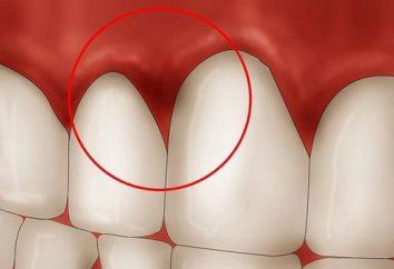 """Oral Care. Balsam für das Zahnfleisch """"Asepta"""""""