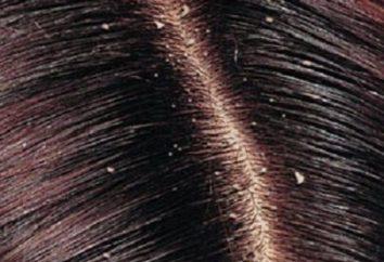 Anti-Caspa Shampoo e outras formas de combater a doença