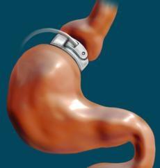 L'inflexion de la vésicule biliaire: causes et traitement