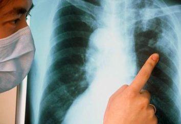 Co jest najważniejszym objawem gruźlicy płucnej?