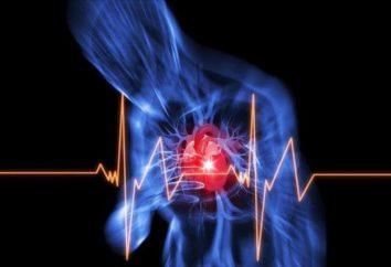 L'angine de poitrine classe fonctionnelle – description, classification et caractéristiques