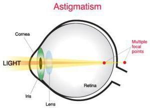 Las lentes de contacto de astigmatismo: características, tipos y uso de la tecnología