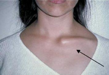 Luxation de la clavicule: Causes, symptômes, diagnostic et traitement