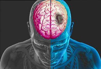 Udar niedokrwienny i krwotoczny udar mózgu: jaka jest różnica?