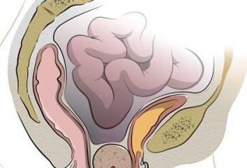 Pominięcie macicy. Objawy i wczesne leczenie