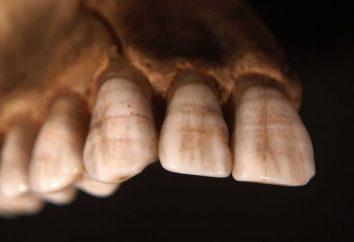 Für diejenigen, die mit Schmelzhypoplasie konfrontiert sind: Ursachen, Prävention und Behandlung