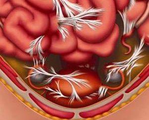 Adesioni dopo cesareo: le cause dei sintomi e trattamento,
