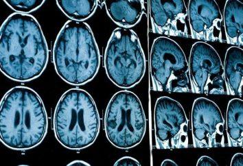 RM con contraste: opiniones, preparación. Cómo hacer resonancia magnética del cerebro con contraste?