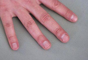Co jeśli człowiek gryzie paznokcie?