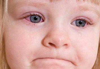 Ungüento para la conjuntivitis para niños – lo que es mejor para elegir?