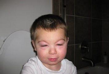 les yeux enflés de l'enfant. traiter ensemble