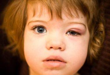 Jęczmień u dzieci: przyczyny, objawy, leczenie