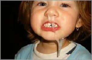Snot nei bambini. Come per trattare e prevenire questa malattia