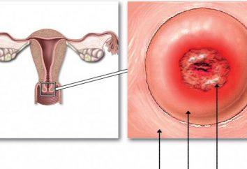 szyjki macicy, zmiany przedrakowe. choroby szyjki macicy: przyczyny, objawy, diagnoza i leczenie