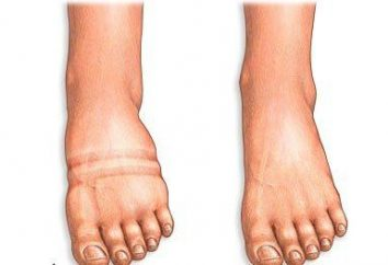 Opuchnięte nogi – co robić?