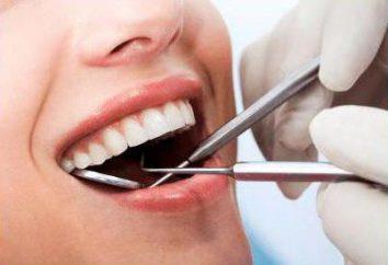 Indications pour l'enlèvement des dents avec parodontite