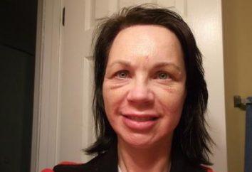 Co zrobić, jeśli masz spuchniętą twarz?